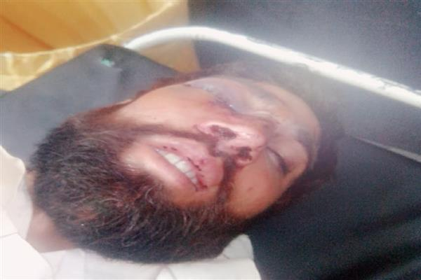 Man beaten with sticks in Bhaderwah  injured seriously | KNO