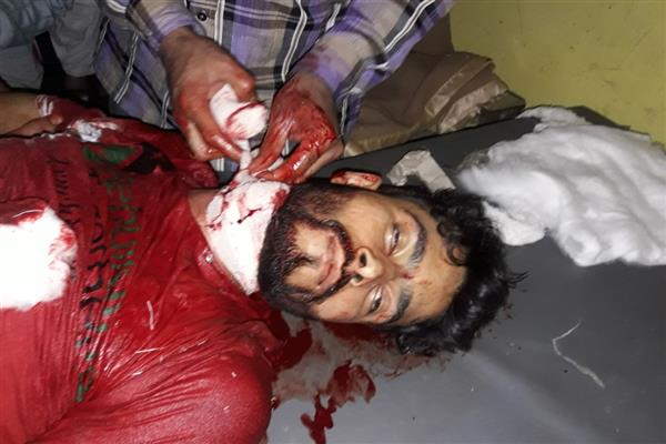 Civiliain killed in Kupwara | KNO