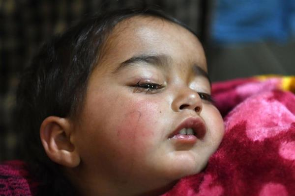 Youngest pellet victim will get Rs 1 lakh assistance