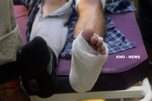 Minor boy injured in Budgam clashes shifted to SKIMS | KNO